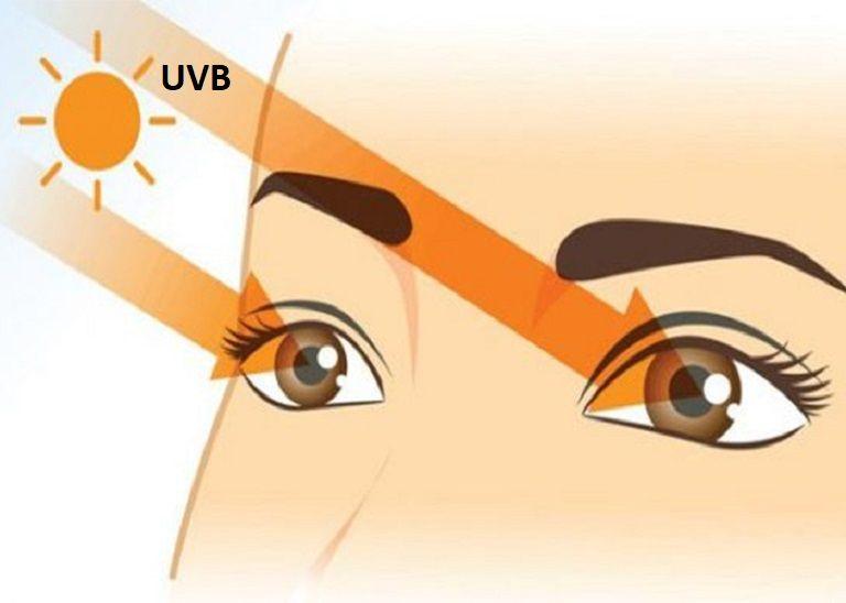 Phương pháp nhìn mặt trời chữa cận thị