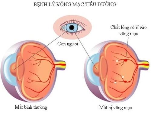 Các biến chứng ở mắt của bệnh đái tháo đường