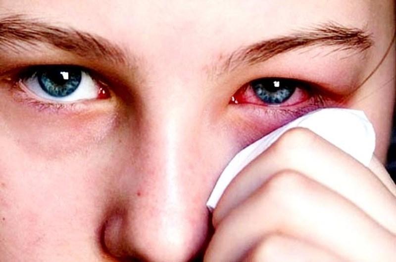 Bật mí 5 cách đơn giản trị bệnh đau mắt đỏ tại nhà