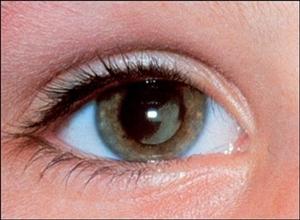 Những điều cần biết về bệnh đục thủy tinh thể ở người trẻ