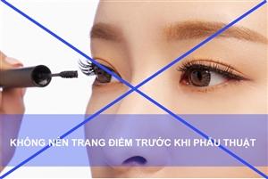 Danh sách những điều cần kiêng kỵ trước và sau khi mổ mắt cận thị