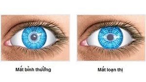 Loạn thị là gì? Dấu hiệu, biểu hiện và cách chữa loạn thị